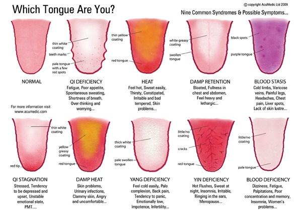 Tongue Syndromes